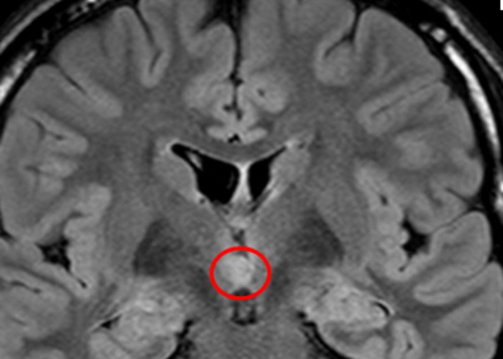 HH MRI